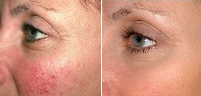 controlling the redness of rosacea, the three tomatoes