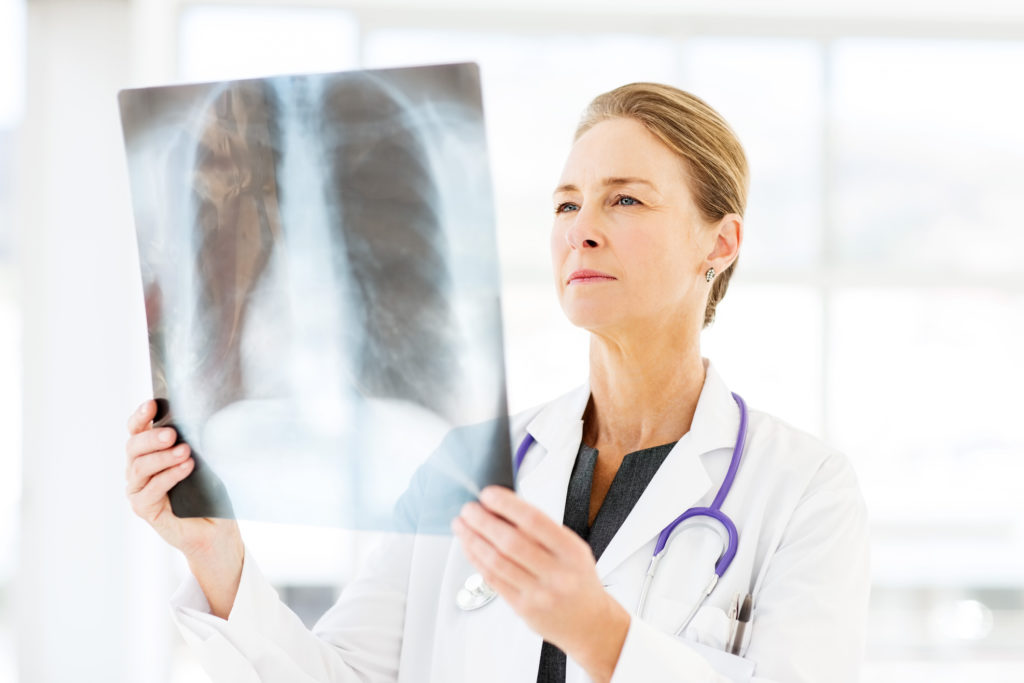 Understanding Your Bone Health as You Age